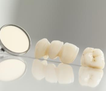 Fort Lauderdale, Florida dentist offers dental crowns for tooth repair