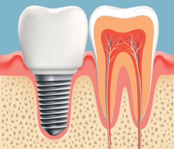 Dental implant process in Fort Lauderdale