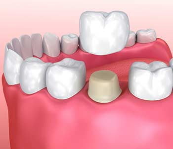 Restore Your Natural Smile and Get Relief from Pain with Dental Crowns in Fort Lauderdale, FL