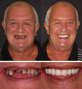 Go Natural Dentistry, Fort Lauderdale, Florida - Before and After Result -01