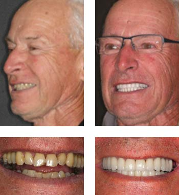 Go Natural Dentistry, Fort Lauderdale, Florida - Before and After Result -10