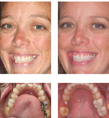 Go Natural Dentistry, Fort Lauderdale, Florida - Before and After Result -11