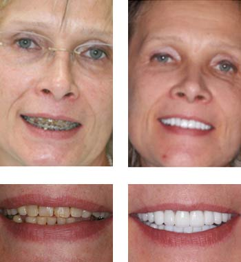 Go Natural Dentistry, Fort Lauderdale, Florida - Before and After Result -12