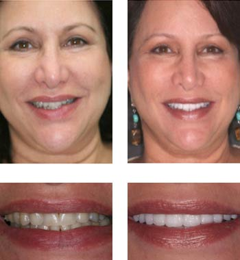 Go Natural Dentistry, Fort Lauderdale, Florida - Before and After Result -13