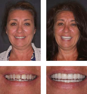 Go Natural Dentistry, Fort Lauderdale, Florida - Before and After Result -14