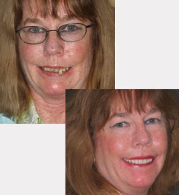 Go Natural Dentistry, Fort Lauderdale, Florida - Before and After Result -15