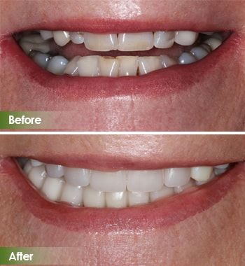 Go Natural Dentistry, Fort Lauderdale, Florida - Before and After Result -6