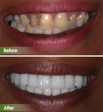 Go Natural Dentistry, Fort Lauderdale, Florida - Before and After Result -17