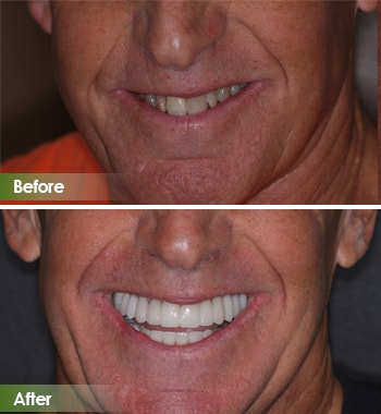 Go Natural Dentistry, Fort Lauderdale, Florida - Before and After Result -18