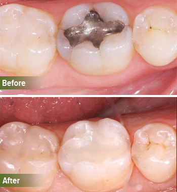 Go Natural Dentistry, Fort Lauderdale, Florida - Before and After Result -22 - Thumb