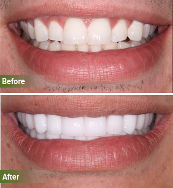 Go Natural Dentistry, Fort Lauderdale, Florida - Before and After Result -23 - Thumb