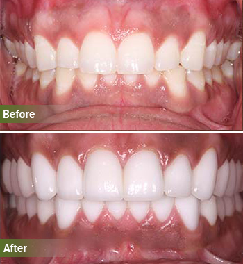 Go Natural Dentistry, Fort Lauderdale, Florida - Before and After Result -24 - Thumb