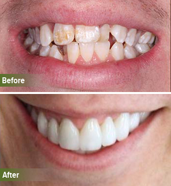 Go Natural Dentistry, Fort Lauderdale, Florida - Before and After Result -25 - Thumb