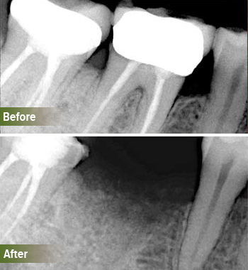 Go Natural Dentistry, Fort Lauderdale, Florida - Before and After Result -26 - Thumb