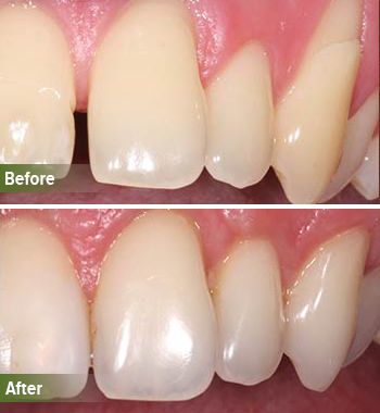 Go Natural Dentistry, Fort Lauderdale, Florida - Before and After Result -27 - Thumb