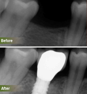 Go Natural Dentistry, Fort Lauderdale, Florida - Before and After Result -28 - Thumb