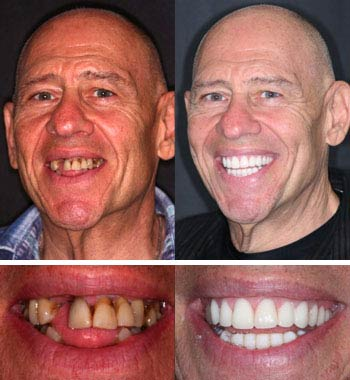 Go Natural Dentistry, Fort Lauderdale, Florida - Before and After Result -03