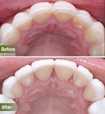 Go Natural Dentistry, Fort Lauderdale, Florida - Before and After Result -30 - Thumb