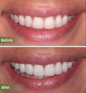 Go Natural Dentistry, Fort Lauderdale, Florida - Before and After Result -31 - Thumb
