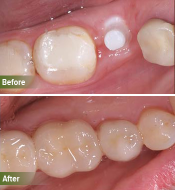 Go Natural Dentistry, Fort Lauderdale, Florida - Before and After Result -32 - Thumb