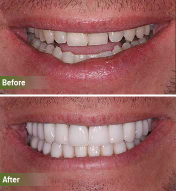 Go Natural Dentistry, Fort Lauderdale, Florida - Before and After Result -33 - Thumb