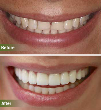 Go Natural Dentistry, Fort Lauderdale, Florida - Before and After Result -34 - Thumb