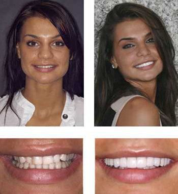 Go Natural Dentistry, Fort Lauderdale, Florida - Before and After Result -35 - Thumb