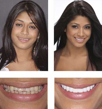 Go Natural Dentistry, Fort Lauderdale, Florida - Before and After Result -37 - Thumb