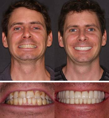Go Natural Dentistry, Fort Lauderdale, Florida - Before and After Result -04