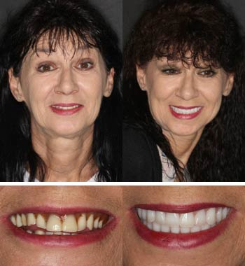 Go Natural Dentistry, Fort Lauderdale, Florida - Before and After Result -05