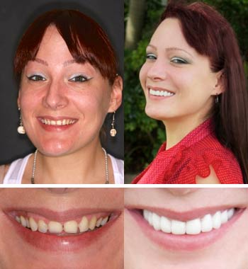 Go Natural Dentistry, Fort Lauderdale, Florida - Before and After Result -06