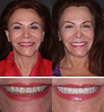 Go Natural Dentistry, Fort Lauderdale, Florida - Before and After Result -07