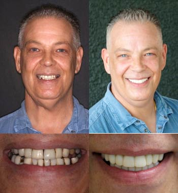 Go Natural Dentistry, Fort Lauderdale, Florida - Before and After Result -08