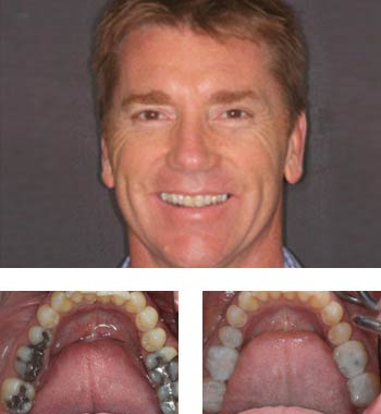 Go Natural Dentistry, Fort Lauderdale, Florida - Before and After Result -09