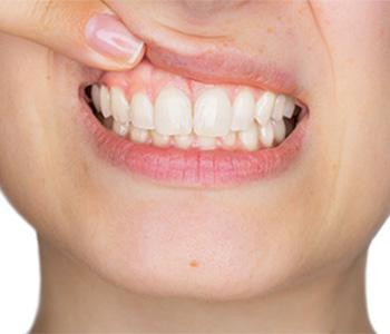 Gum Graft at Go Natural Dentistry, Fort Lauderdale, FL