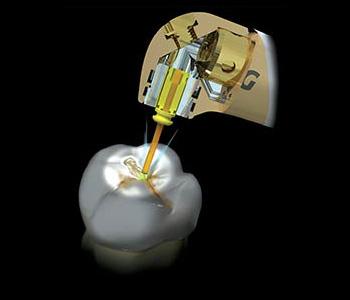 Laser Dentistry Fort Lauderdale - Laser Dentistry