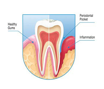 Gum Disease treatments at Go Natural Dentistry, Fort Lauderdale, FL