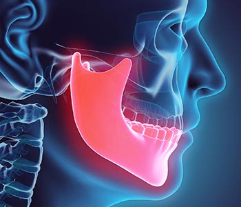 TMJ, Clenching and Bruxism Services at Go Natural Dentistry, Fort Lauderdale