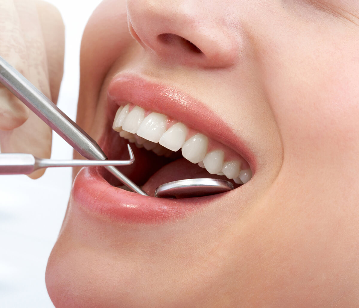 Dentist Explains how the 17th Third Molar Affects Overall Health in Fort Lauderdale, FL Area