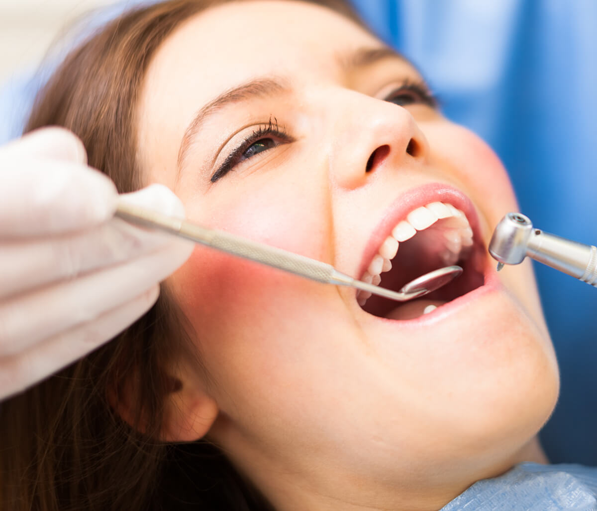 Dentist Gives an in-depth Explanation on 32nd Third Molar in Fort Lauderdale, FL Area
