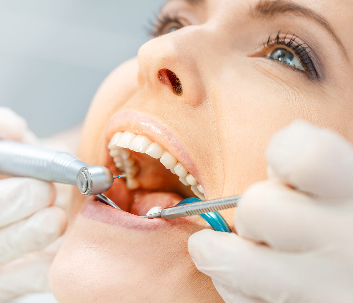 Dentist Takes a Holistic Perspective on the Second Premolar Tooth in Fort Lauderdale, FL Area
